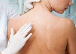 L'importanza della visita dermatologica